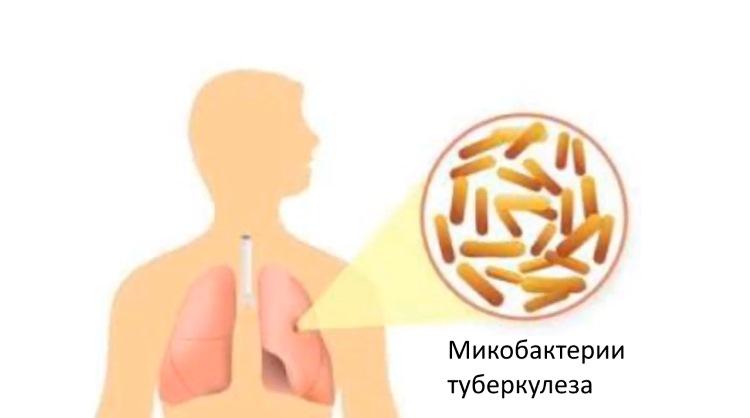 Причины заболевания туберкулезом