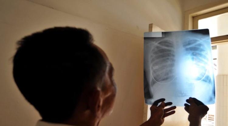 Профилактика туберкулеза рентген, флюорография