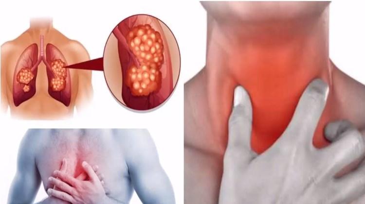 Виды туберкулеза дыхательных путей