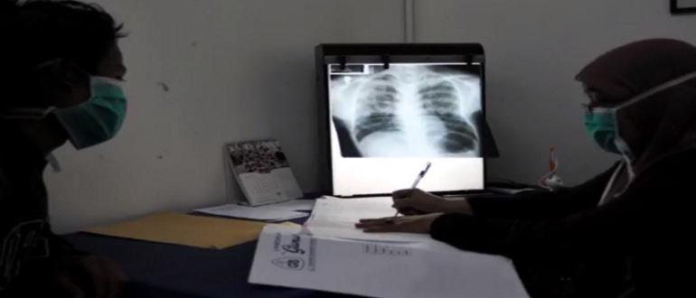 Туберкулёз легких на рентгене