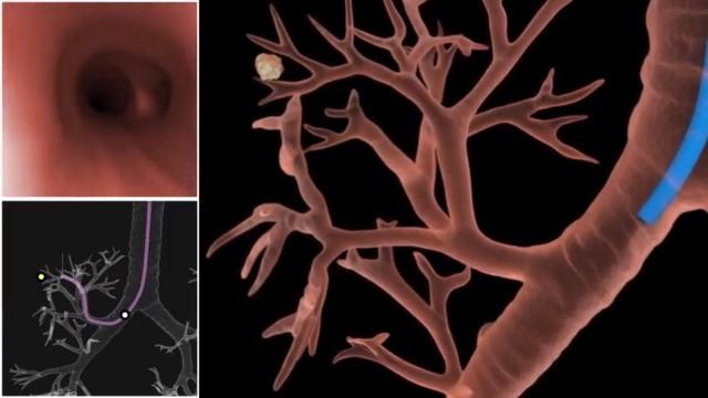 Проведение трансбронхиальной биопсии легких