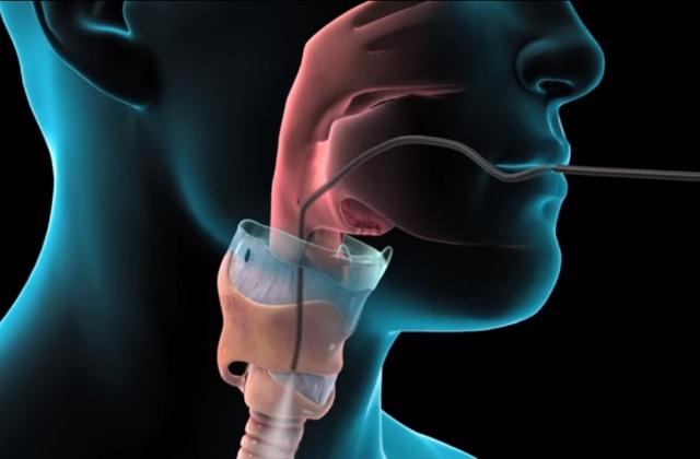 Трансбронхиальная биопсия легких