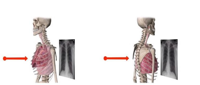 Рентген легких определяет болезнь легких