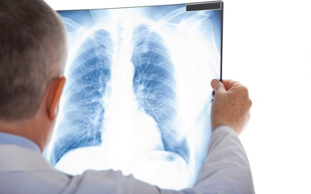 Доктор читает рентген снимок