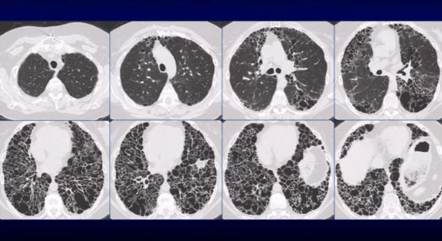 МСКТ грудной клетки на снимках