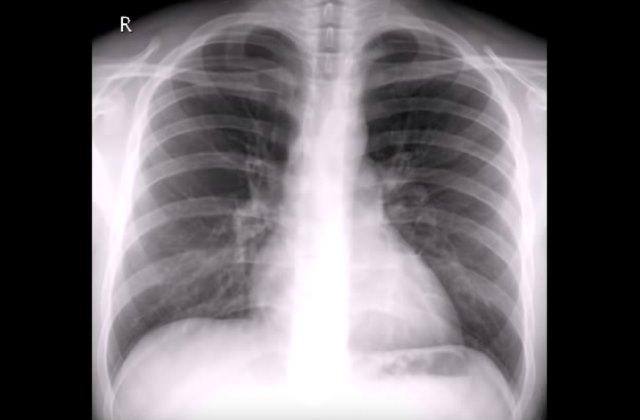 Рентген грудной клетки при диагностике заболевания