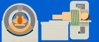 Мультиспиральная компьютерная томография в действии