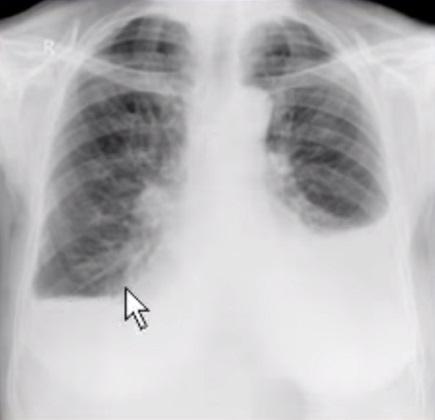 Диагностика пневмоторакса с помощью рентгена