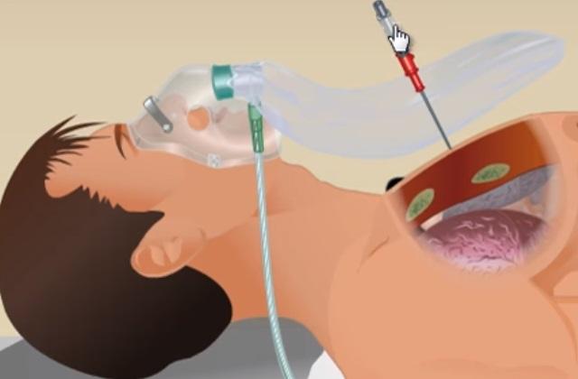 Плевральная пункция, с целью устранения скопившегося воздуха