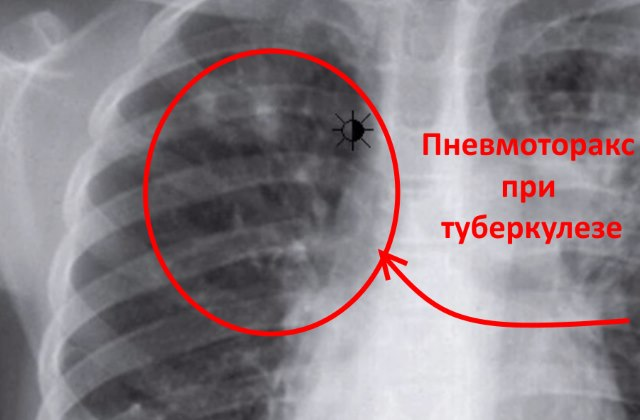Пневмоторакс на рентгене при туберкулезе легких