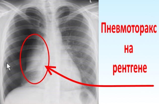 Пневмоторакс на рентгене проявляется в виде просветления