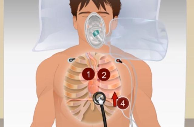Пневмоторакс при искусственной вентиляции легких