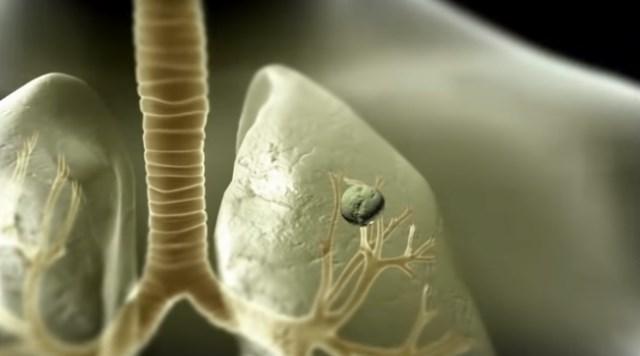 Скопление в легких микобактерий туберкулеза