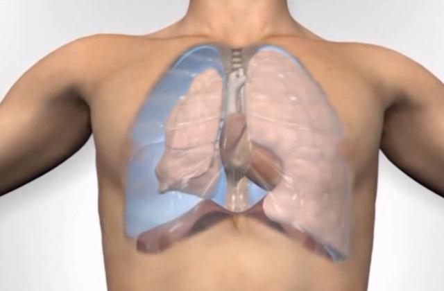Экстренная операция назначается при скоплении воздуха в плевральной полости