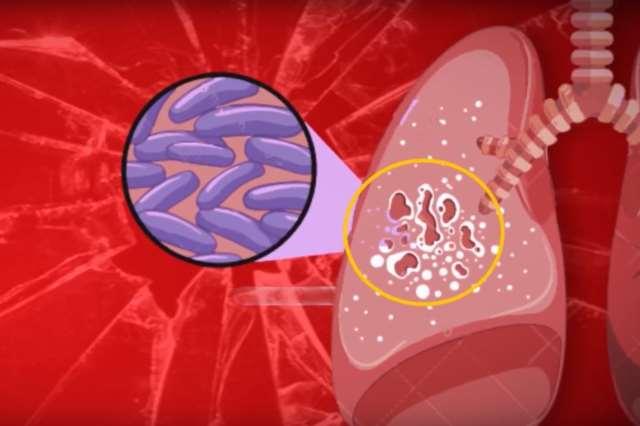 Кавернозный туберкулез очаг болезни