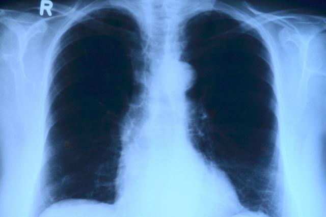 Рентген эффективный метод диагностики заболевания