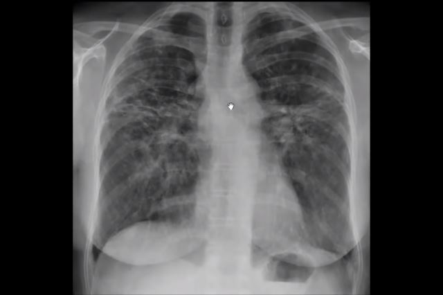 Рентгеновский снимок легких