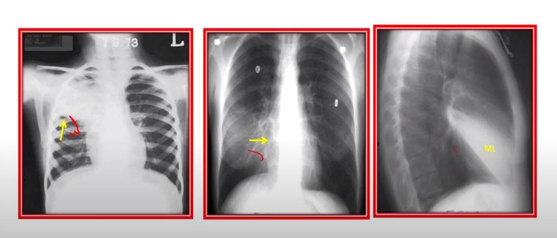 Формы туберкулеза легких