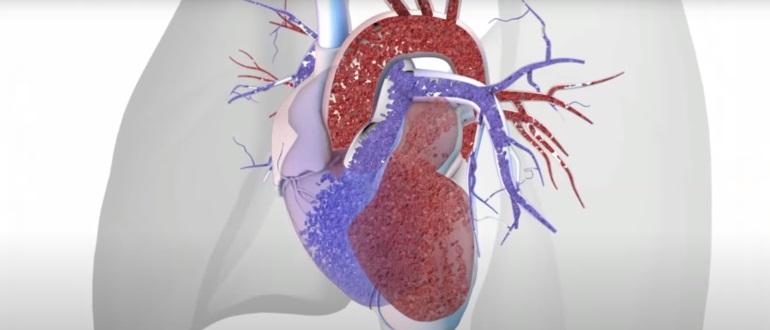 Заболевание может привести к синдрому легочного сердца
