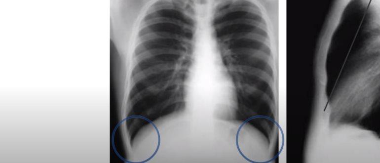 Плевральная жидкость на рентгене