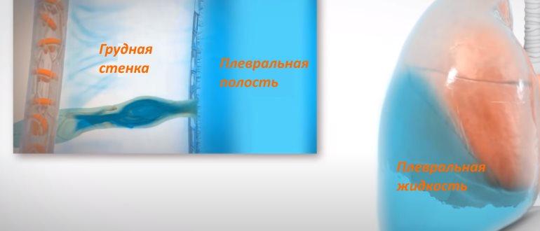 Скопление жидкости в легких