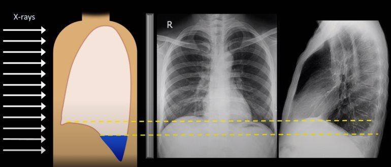 Туберкулезный плеврит на рентгене