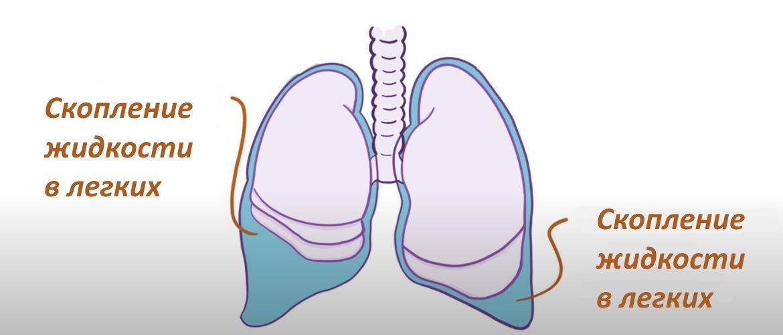 Туберкулезный плеврит причины симптомы лечение
