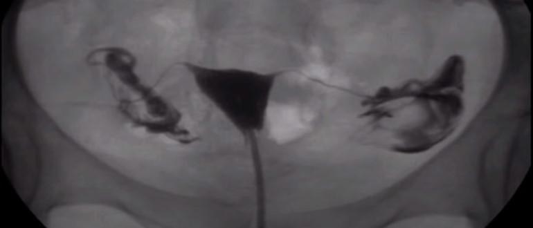 Рентгеновское исследование полости матки