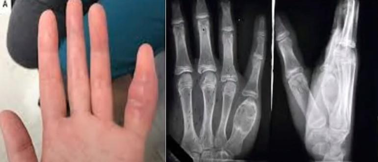 Туберкулез костей и суставов на рентгене
