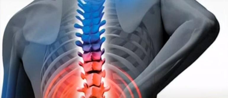 Туберкулез позвоночника может проявляться как боль в спине