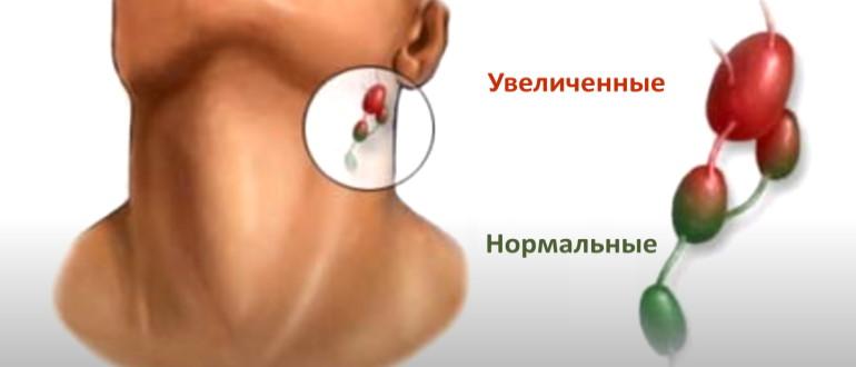 Увеличенные и нормальные лимфоузлы