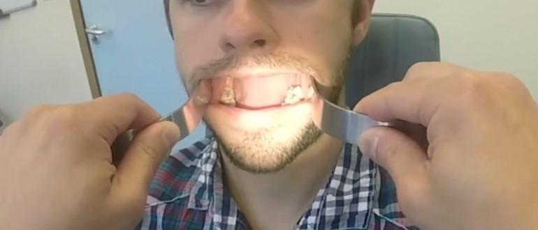 Осмотр полости рта специалистом