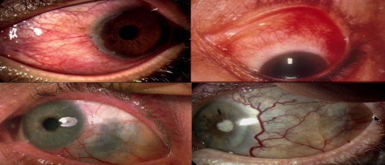 Поражение глаза микобактерией