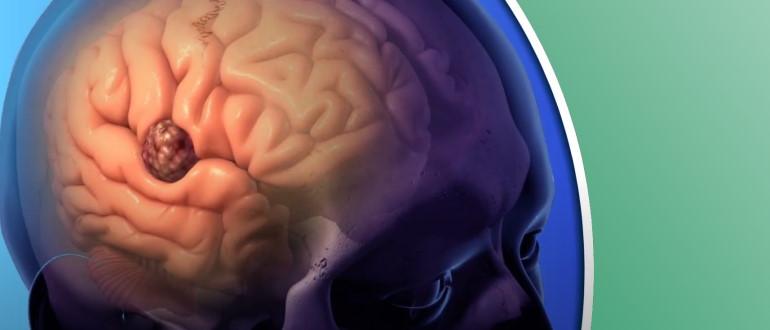 Поражение головного мозга инфекцией
