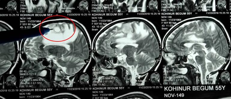 Снимки туберкулеза головного мозга