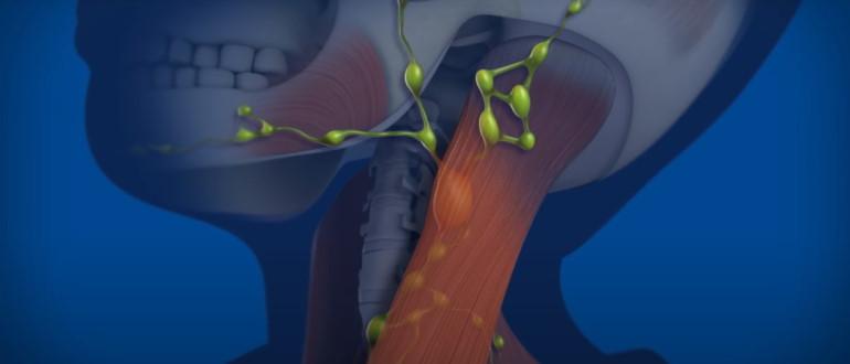 Болезнь может поразить лимфоузлы