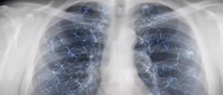 Грудная клетка на рентгене